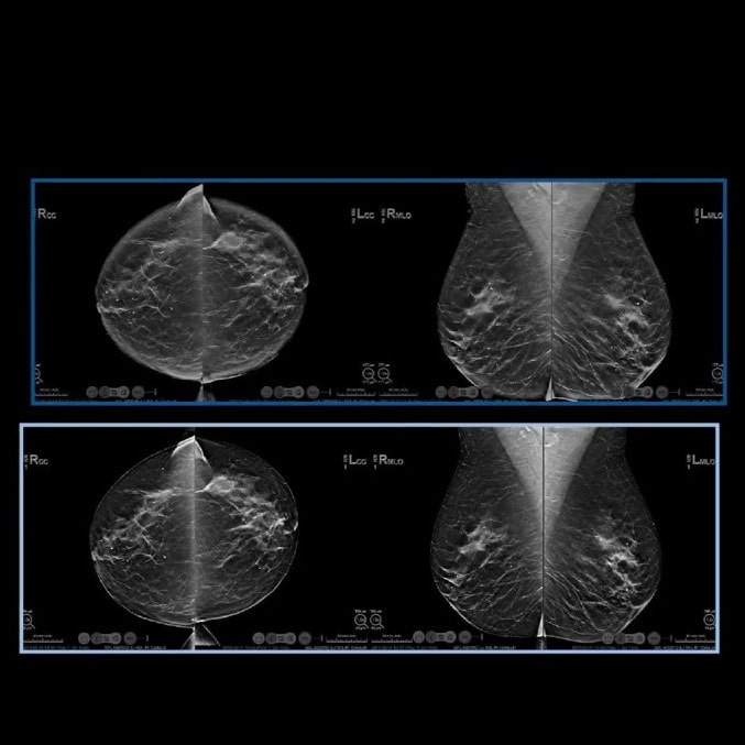 Hologic Ecografia Mamografia C View Imagen sintetizada 2 min
