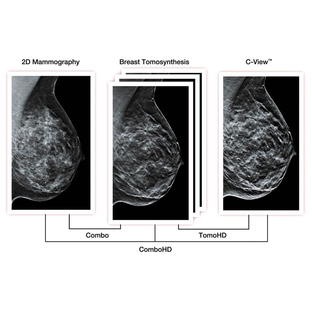 Hologic Ecografia Mamografia C View Imagen sintetizada min
