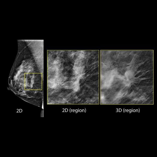 Hologic Ecografia Mamografia Imagen Sintetizada 2D min