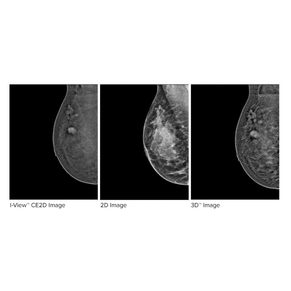 Hologic Ecografia Mamografia imagen de contraste I View min