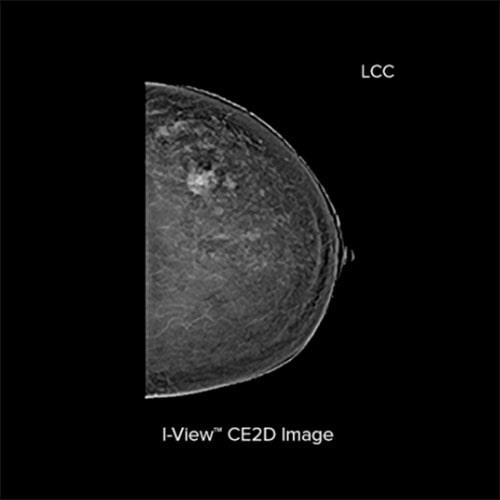 Hologic Ecografia Mamografia imagen de contraste I View2 min