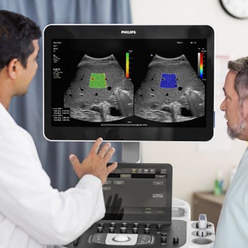 Philips Ecografia EPIQ Elite Radiologia min